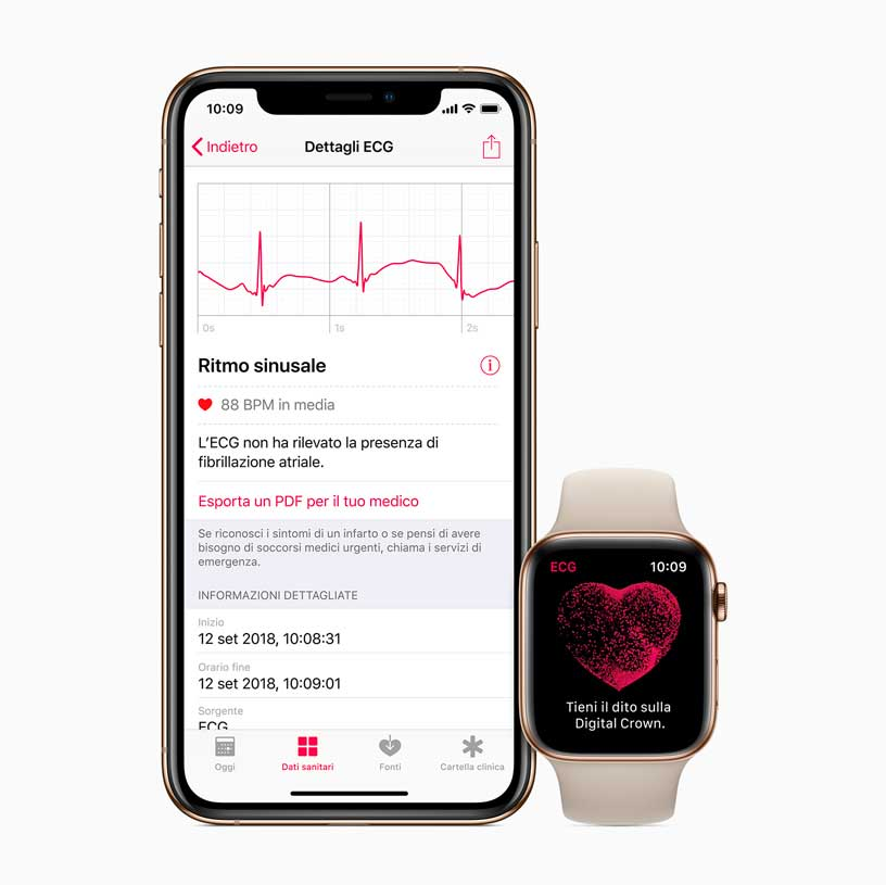 ECG iPhone watch ECG